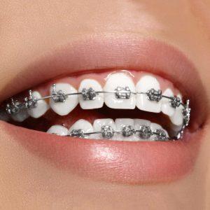 ارتودنسی با کشیدن دندان، ارتودنسی