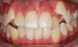 ارتودنسی با کشیدن دندان، دندان شلوغ