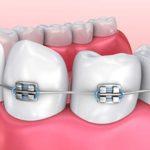 اارتودنسی دندان ایمپلنت شده