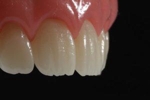 ارتودنسی دندان های پیش