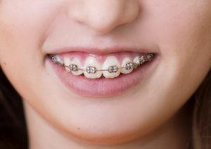 ارتودنسی دندان قیمت