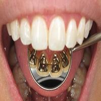 ارتودنسی پشت دندان