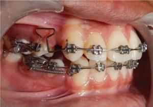ارتودنسی عقب بردن دندان