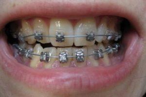 ارتودنسی دندان اضافی