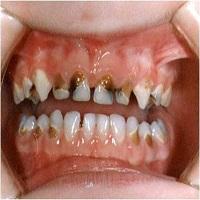 ارتودنسی دندان پوسیده